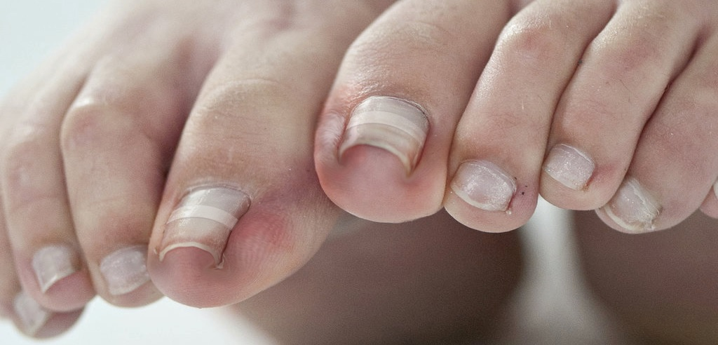 Photo Of A Person With Nail Fungus